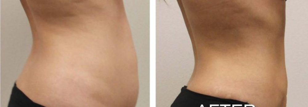 Obese people are not candidates for Liposuction
